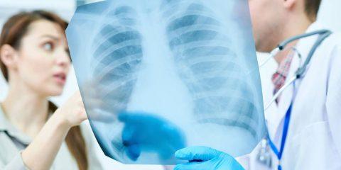 נכות רפואית בגין מחלת ריאות חסימתית כרונית (COPD)